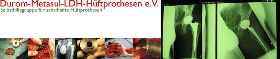 Durom-Hüftprobleme - Gefährlicher Abrieb durch Hüftprothesen